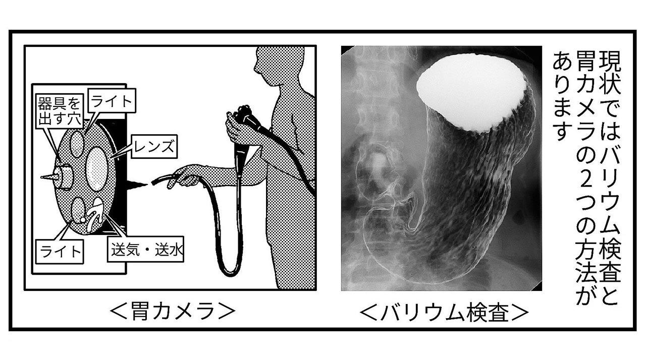 コツ バリウム 飲む